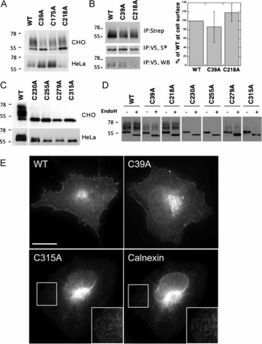 Mutations of Ig-like domain cysteines lead to ER retention of CMG2A,C. HeLa or CHO cells were transfected for 48 h with WT or mutant CMG2-V5 constructs. Cell extracts were analysed by SDS–PAGE and Western blotting with an anti-V5 antibody.B. HeLa cells were transfected for 48 h with WT or mutant CMG2-V5 cDNAs. Confluent cells were pulsed with [35S]-methionine and subsequently incubated with 0.2 mg/ml NHS-SS-biotin. Biotinylated CMG2 proteins and expression levels were quantified using the Typhoon scanner. For each experiment, biotinylated CMG2 values were normalized to the synthesis levels and expressed as a percentage of WT. Error bars represent the standard deviation (n = 3).D. CHO cell lysates were submitted to immunoprecipitation with an anti-V5 antibody, treated with or without EndoH and analysed by SDS–PAGE and Western blotting with an anti-V5 antibody.E. HeLa cells were transfected with WT or mutant CMG2-V5 cDNA for 24 h prior to fixation and permeabilization and labelling with anti-V5 monoclonal as well as anti-calnexin polyclonal antibodies. The inserts illustrate an enlargement of a specific region. Bar: 10 µm.