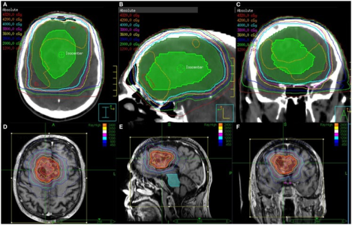 EBRT and CyberKnife SRS treatment plans for a patient who received 40 Gy in 15 fractions to FLAIR for the first course followed an SRS boost to T1 Enhancement at a total dose of 24 Gy delivered in 3 fractions. Shown are the (A) axial, (B) sagittal, and (C) coronal views of the EBRT treatment plans and the (D) axial, (E) sagittal, and (F) coronal views of the CyberKnife SRS treatment plans.