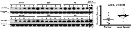 Workflow of western blotting assisted verification for A1BG.Western blot images across 12 ADs, 12 SCCs and 12 control sera. Coomassie stained Albumin (ALB) was shown as the loading controls. IOD values were extracted and normalized by this calibration sample, suggesting the differential distribution of A1BG serum levels between normal and lung cancer cases.