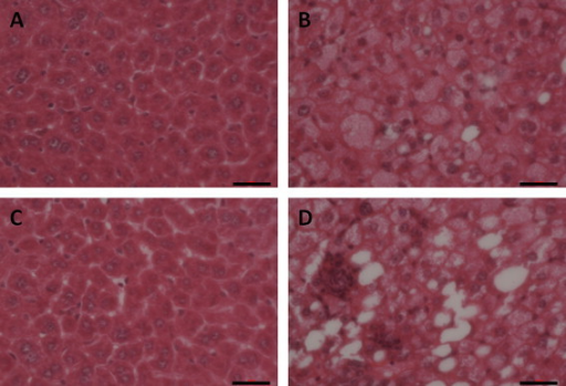 NAFLD models in WT and KO mice were established by feeding with high-fat diet for eight consecutive weeks. Fresh sections were stained with H&E to demonstrate lipid accumulation. The sections were examined by light microscopy, and the liver images are displayed at 200× original magnification: (A) Nrf2+/+ mice on control diet; (B) Nrf2+/+ mice on high-fat diet; (C) Nrf2−/− mice on control diet; (D) Nrf2−/− mice on high-fat diet. The Nrf2+/+ and Nrf2−/− high-fat model groups liver sections exhibited severe hepatosteatosis consisting of mixed microvesicular and macrovesicular fat accumulation. The horizontal scale bar represents 100 μm.
