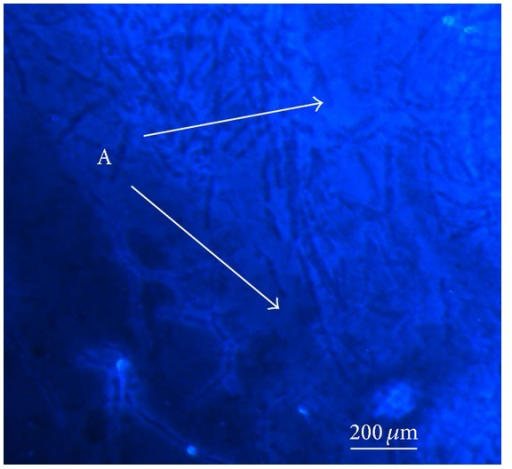 Morphology of exopolysaccharides fibers using confocal laser scanning microscopy. The tested samples of GpEPS were stained with Fluorescence Brightener 28 commonly used in order to detection of β-linked polysaccharides. For visualization of the GpEPS, the inverted microscope Axiovert 200 M equipped with an LSM 5 Pascal head (with magnification 200x) was used. The letter (A) indicates the luminous fibers exhibiting visible β-linked polysaccharide fragments.