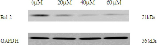 The expression of Bcl-2 in 0, 20, 40, 60 μM EN-treated MCF-7 cells. The cells were treated with EN for 48 h. Bcl-2 were analysed by western blot. GAPDH was used as an equal loading control