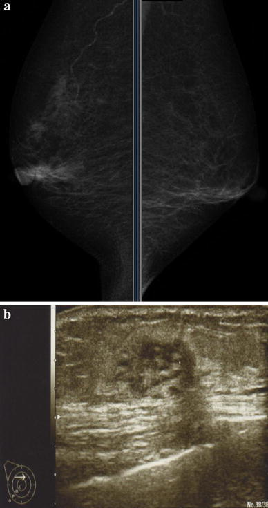 a Mammogram findings. The craniocaudal and mediolateral oblique (MLO) view revealed no mass lesion or other abnormality in the bilateral breasts. b Ultrasonography findings. An irregular, round and solid hypoechoic nodule in the 11:00 o'clock position corresponds to a nodule palpated on clinical examination