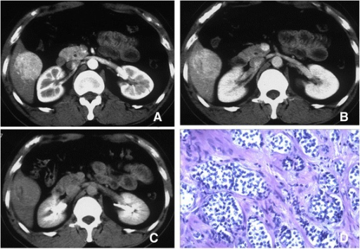 CT scan and histology of grade 1 PHNET. Post-contrast CT image of the arterial phase (a), the portal venous phase (b) and the delayed phase (c) shows marked enhancement in the PHNET relative to the liver parenchyma (right lobe at the arterial phase), and slight hyperattenuation relative to the surrounding liver parenchyma in the delayed phases. The integrity of the capsule is maintained. The mitosis rate shows up as hypo-density and no enhancement on the dynamic enhanced CT scan. HE staining of the tumor (d) shows tumor cells arranged as solid nests, consistent cell size and mitosis rate was 1/10 HPF. Magnification: D = 100X