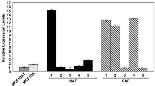 Comparative expression of insulin-like growth factor (IGF) II mRNA. IGF II expression levels in MCF10A cells, MCF10AT cells, normal breast-associated fibroblasts (NAF) and carcinoma-associated fibroblasts (CAF) were determined by quantitative real-time PCR. All expression levels are relative to the calibrator, MCF10AT cells. The error bars represent the standard deviation of triplicate assays for each sample. Comparison of the mean expression level between NAF (mean = 4.2) and CAF (mean = 7.7) did not reach statistical significance (P = 0.39, t test).
