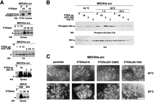 Effect of functional transfer of wild-type or mutant PTEN expression vectors on the morphology of MDCKts-src. (A) Analysis of PTEN expression. The ectopic expression of wild-type and PTEN mutants deficient in either the lipid phosphatase activity (PTENΔ237–239) or both the protein and lipid phosphatase activities (PTEN Δ55–70) was assessed by Western blot using antibodies directed against PTEN, or against the Xpress or HA epitopes. Cell lines are indicated as parental (p) or as transfected clone numbers. (B) Analysis of Akt activity. Akt phosphorylation, which is a measurement of Akt activity, was analyzed with anti–phospho-Akt(Ser 473) antibody in cell lysates from parental MDCKts-src cells (p) and their derivatives transfected with either wild-type (clone 18) or mutant PTEN. Growth was either at the nonpermissive temperature for Src activity (40°C) or after transfer to 35°C for 1 or 18 h as indicated. The total amount of Akt was assessed using anti-Akt antibody. (C) Morphology of parental MDCKts-src cells and their derivatives transfected with either wild-type or mutant PTEN. MDCKts-src cells exhibited an epithelial morphology at 40°C and a fibroblast-like morphology when grown for 14 h at the permissive temperature for Src activity (35°C). Neither lipid phosphatase–deficient (PTENΔ237–239) nor the phosphatase-inactive (PTEN Δ55–70) PTEN mutants preserved the epithelial morphology at the permissive temperature as the wild-type PTEN did. Bar, 20 μm.