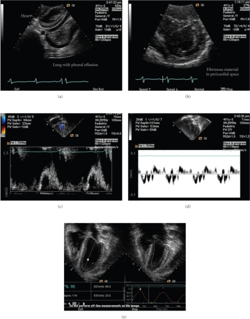 Echocardiogram showing (a) pericardial effusion and pleural effusion at presentation (from subcostal imaging plane), (b) progression of pericardial effusion with fibrinous material (from short axis plane), (c) mitral valve Doppler inflow signal with reversal of E and A waves, suggestive of restrictive myocardial disease with impaired diastolic function, (d) impaired diastolic function suggested by low Tissue Doppler signal, and (e) preserved left ventricular systolic function.