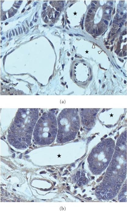 Intestinal lymphangiogenesis (a, b) is increased in rats with microsurgical extrahepatic cholestasis. ⋆ indicates lymphatic vessels lumen, and arrows indicate stained lymphatic endothelium. Immunohistochemical staining with Prox-1 antibody (×40).