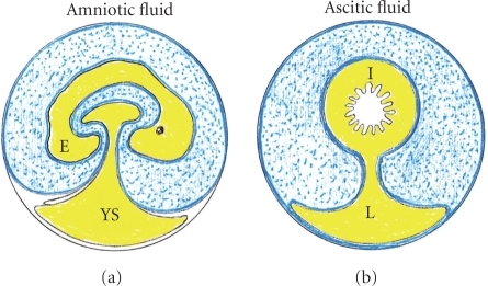 Comparative and schematic view of the amniotic egg and ascites in the decompensated portal hypertensive syndrome. Amniotic fluid circulates through the gastrointestinal tract of the embryo favoring its trophism and maturation. On the contrary, in the adult organism the proposed equivalent fluid, the ascitic fluid, is confined within peritoneal cavity. E: embryo; YS: yolk sac; I: intestine; L: liver.