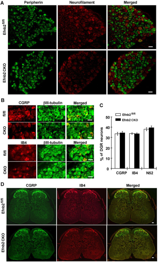 Neural marker expression was normal in DRG neurons of ephrin-B2 CKO mice. (A) Whole DRG sections of Efnb2 CKO mutant mice and Efnb2fl/fl littermate controls were labeled with anti-peripherin (green) and anti-neurofilament (red) antibodies. The right panels are merged images of the left and middle panels. (B) DRG sections were also labeled with anti-CGRP (red) and anti-IB4 (red) antibodies, co-labeled with anti-βIII-tubulin (green). The right panels are erged images of the left and middle panels. (C) The proportions of CGRP, IB4 and neurofilament (N52) expressing neurons were normal in Efnb2 CKO animals compared to Efnb2fl/fl littermate controls. (D) Cross section of lumbar spinal cord (L3 - L5) stained with anti-CGRP (green) antibody and anti-IB4 (red) antibody. In laminae I-II, both CGRP positive terminals and IB4 positive terminals were identified in the Efnb2 CKO mutant mice and Efnb2fl/fl littermate controls. Scale bar = 50 μm.