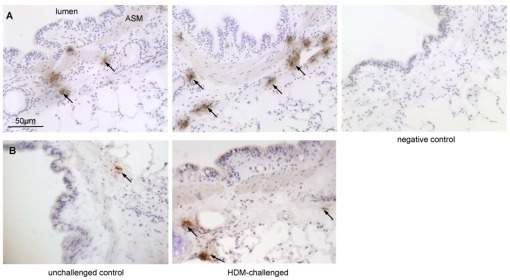 Airway sections stained with antibodies against mast cell tryptase and chymase.(a) Tryptase-positive mast cells and (b) chymase-positive mast cells. The house dust mite (HDM) treated segment received 24 weekly challenges and the control segment was untreated. Negative control shows omission of the primary antibody. Arrows indicate positive cells.
