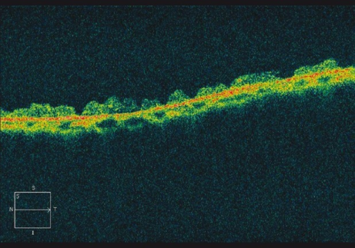 Optical coherence tomography image of snail-track degeneration demonstrating thinning with markedly wrinkled inner retinal surface and no vitreoretinal abnormalities