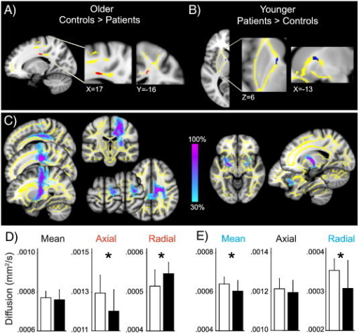 White matter findings in fibromyalgia patients. A) Older patients had decreased FA compared to matched controls in the corpus callosum adjacent to the right PCC (posterior cingulate cortex). The significant FA cluster controlling for age (older patients < older controls; red, p < 0.05 corrected) is displayed in the ROI mask (yellow). There were no significant clusters for the opposite contrast. B) Younger patients had marginally increased FA compared to matched controls in the anterior thalamic radiation/anterior limb of the internal capsule medial to the left putamen. The FA cluster controlling for age (younger patients > younger controls; blue, p = 0.058 corrected) is displayed in the ROI mask (yellow). There were no significant (or near significant) clusters for the opposite contrast. C) Affected white matter tracts in older (left) and younger (right) patients. Colorbar shows the percentage of subjects who share a common pathway. D) Axial diffusivity was significantly lower in older patients compared to matched controls (ANOVA controlling for age; F = 5.85, p = 0.024), radial diffusivity was significantly higher (F = 7.71, p = 0.011) and there was no significant group difference in mean diffusivity (F = 0.32, p = 0.581). E) Mean and radial diffusivities were significantly lower in younger patients compared to matched controls (ANOVA controlling for age; mean diff., F = 5.05, p = 0.033; radial, F = 5.31, p = 0.029), with no significant group difference in axial diffusivity (F = 0.832, 0.370). Results are displayed on the study average brain; left side of the brain is on the left. Bars represent mean in controls (white) and patients (black), error bars represent SD.