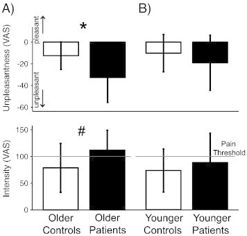 Pain sensitivity in fibromyalgia patients. A) Older patients (full bars) were more sensitive to pressure stimuli applied on the thumb than matched controls (open bars) *p = 0.012 (unpleasantness), #p = 0.052 (intensity). B) Younger patients (full bars) were not more sensitive to pressure than matched controls (open bars; p = 0.304 (unpleasantness), p = 0.426 (intensity)).