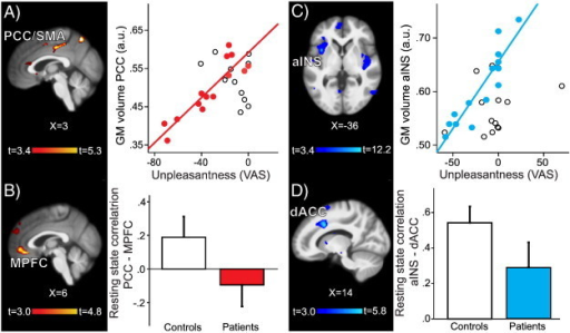 Relationship between pain sensitivity and structural and functional gray matter findings in older and younger patients. A) Left: In older patients the gray matter of the right PCC/SMA (posterior cingulate cortex/supplementary motor area) was negatively correlated with pain unpleasantness. Right: Extracted mean gray matter of the PCC/SMA cluster plotted against pain unpleasantness scores in older patients (red circles) and older controls (open circles). B) Left: Functional connectivity analysis of the PCC/SMA seed showed decreased resting state correlations with MPFC (medial prefrontal cortex) in older patients compared to matched controls; colorbar shows t-values for the contrast older patients < older controls; there were no significant clusters for the opposite contrast. Right: Parameter estimates (correlation values) for older controls (white bar) and older patients (red bar). C) Left: In younger patients the gray matter of the left aINS (anterior insula) was negatively correlated with pain unpleasantness (colorbar shows t-values for the whole brain VBM regression with pain unpleasantness score. Right: Extracted mean gray matter of the aINS cluster plotted against pain unpleasantness scores in younger patients (blue circles) and younger controls (open circles). D) Left: Functional connectivity analysis of the aINS seed showed decreased resting state correlations to dACC (dorsal anterior cingulate cortex) in younger patients compared to matched controls; colorbar shows t-values for the contrast younger < younger controls; there were no significant clusters for the opposite contrast. Right: Parameter estimates (correlation values) for younger controls (white bar) and younger patients (blue bar). Results are displayed on study average brain, left side of the brain is on the left; a.u., arbitrary unit.