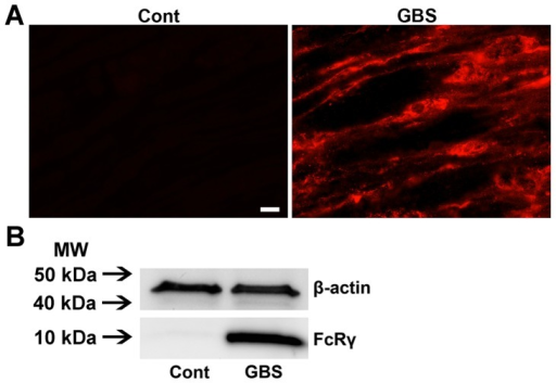 Upregulation of Fcγ receptors in nerves of GBS patients.Micrographs showing strong signal of Fcγ common chain in the nerve of a GBS patient but not in a control nerve (A). Western blotting images showing significant upregulation of Fcγ common chain expression in GBS nerves compared to controls (B). Scale bar, 10 µm.