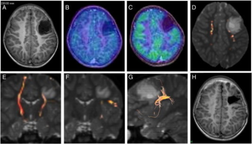 Case 2. T1WI showing a well-demarcated hypointensity mass lesion in the left frontal lobe (A). The tumor shows low uptake in MET-PET (fused with T1WI) (B) and hypo-uptake in FDG-PET (fused with T1WI) (C). Fiber tractography showing that the left pyramidal tract is located posteromediocaudal to the tumor (D and E) and that the left arcuate fasciculus is located caudolateral to the tumor (F and G). Postoperative T1WI showed the tumor to be totally resected (H).