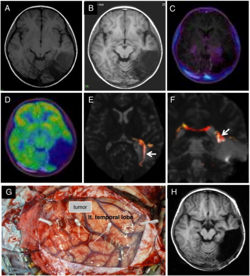 Case 3. T1WI after the first surgery showing a partially resected, well-demarcated, hypointensity mass lesion in the left posterior temporal lobe (A). Two years later, T1WI showing tumor progression (B). The tumor showed low uptake in MET-PET (fused with T1WI) (C) and hypo-uptake in FDG-PET (fused with T1WI) (D). Fiber tractography showed the left visual tract (arrow) to be mediorostral to the tumor (E and F). This is a photograph showing the neuronavigation-guided fence-post tube technique used in the surgery (G). Postoperative T1WI showed that the tumor was totally resected (H).