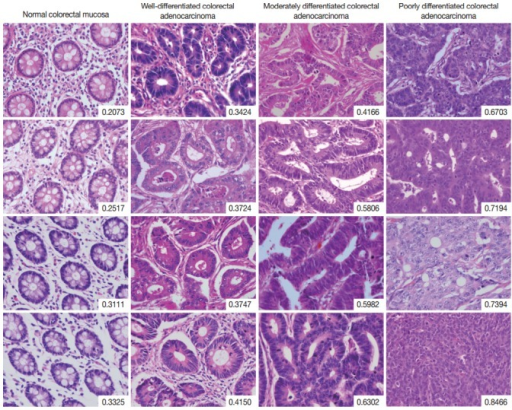 Selected images of colorectal adenocarcinoma analyzed by the disorderliness score formula. The scores are presented in the lower right corners of each image. Note the overall tendency of the disorderliness score to increase with decreasing tumor differentiation.