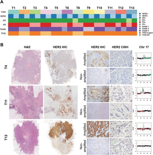 HER2 heterogeneous breast cancers are ER-positive and preferentially TP53 mutant. (A) Clinico-pathologic characteristics of HER2 heterogeneous breast cancers included in this study. ER, estrogen receptor; PR progesterone receptor; WT, wild-type. (B) Micrographs of representative hematoxylin and eosin (H&E) stained sections, HER2 immunohistochemistry (IHC) and HER2 chromogenic in situ hybridization (CISH) of selected HER2 heterogeneous breast cancers included in this study (scale bar IHC, 200 μm; scale bar CISH, 50 μm). Chromosome 17 plots of microdissected HER2-positive and HER2-negative components of each case confirming the presence and absence of HER2 gene amplification (17q12), respectively. In the chromosome plots, the circular binary segmentation (cbs)-smoothed Log2 ratios for each bacterial artificial chromosome mapping to chromosome 17 were plotted on the y-axis and their genomic positions were plotted on the x-axis. Gains, amplifications and losses are highlighted in dark green, bright green and red, respectively. Please see Additional file 2 for the remaining cases.