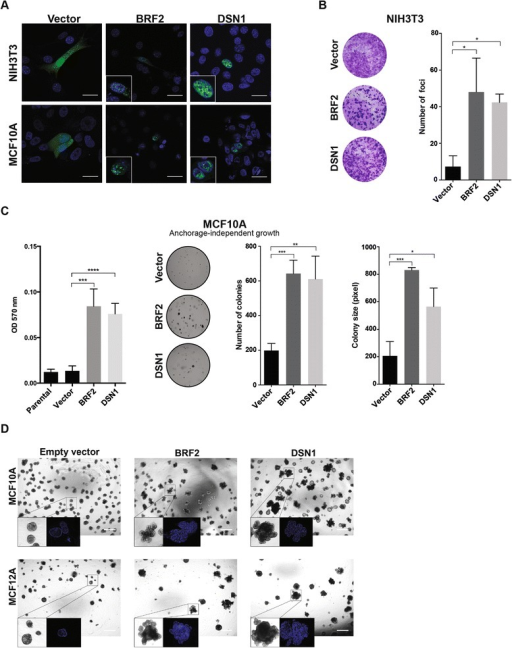 BRF2 and DSN1 amplifications are potential driver genetic alterations in HER2-negative breast cancer cells. (A) Nuclear subcellular localization of BRF2 and DSN1 in NIH3T3 (top) and MCF10A (bottom) cells expressing BRF2-ZsGreen and DSN1-ZsGreen (scale bar, 25 μm). (B) Foci formation assay of NIH3T3 cells expressing vector control, BRF2 or DSN1 protein. Cells were fixed and stained with crystal violet 21 days after plating, and the foci were quantified (see Materials and methods). *P < 0.05, unpaired t-test. Error bars represent standard deviation of mean. (C) Anchorage-independent growth of MCF10A cells expressing vector control, BRF2 or DSN1 protein. Quantification was performed using an MTT assay (left) or by defining the number and size of colonies (right). *P < 0.05, **P < 0.01, ***P < 0.001, ****P < 0.0001, unpaired t-test. Error bars represent standard deviation of mean. (D) Impact of empty vector, BRF2 and DSN1 expression on growth and glandular architecture of MCF10A (top) and MCF12A (bottom) cells grown in three-dimensional basement membrane cultures (scale bar, 500 μm).