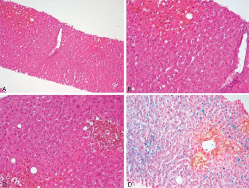 Liver histology. A and B: Portal tract (in the middle) and centrilobular cholestasis [10× (A), 20× (B) original magnification]. C and D: Mild steatosis and Kupffer cell activation with hemosiderosis are associated with zone 3 cholestasis (C: 20 × original magnification, D: Perls stain).