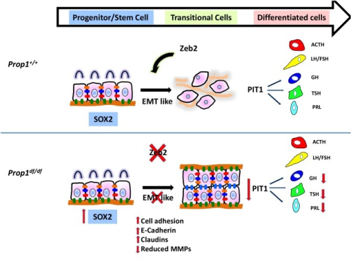 Model of Prop1's role in the transition of stem cells to differentiation.During normal pituitary development when stem cells transition toward differentiation they exit the cell cycle and express Cyclin E. Our results suggest that for progenitors to differentiate they need to go through an EMT-like process where E-cadherin is down-regulated and the cells lose adhesion. In the absence of Prop1, the expression of genes that can induce EMT, like Zeb2, is reduced, leading to increased cell adhesion and increased expression of tight junction proteins like claudins. Our data suggest that PROP1 is required for progenitors to progress to the transitional stage marked by Cyclin E expression embryonically, and in the absence of Prop1, Sox2 expression is elevated. The failure of progenitors cells to advance to the transitional stage leads to pituitary hormone deficiency and organ dysmorphology.DOI:http://dx.doi.org/10.7554/eLife.14470.017