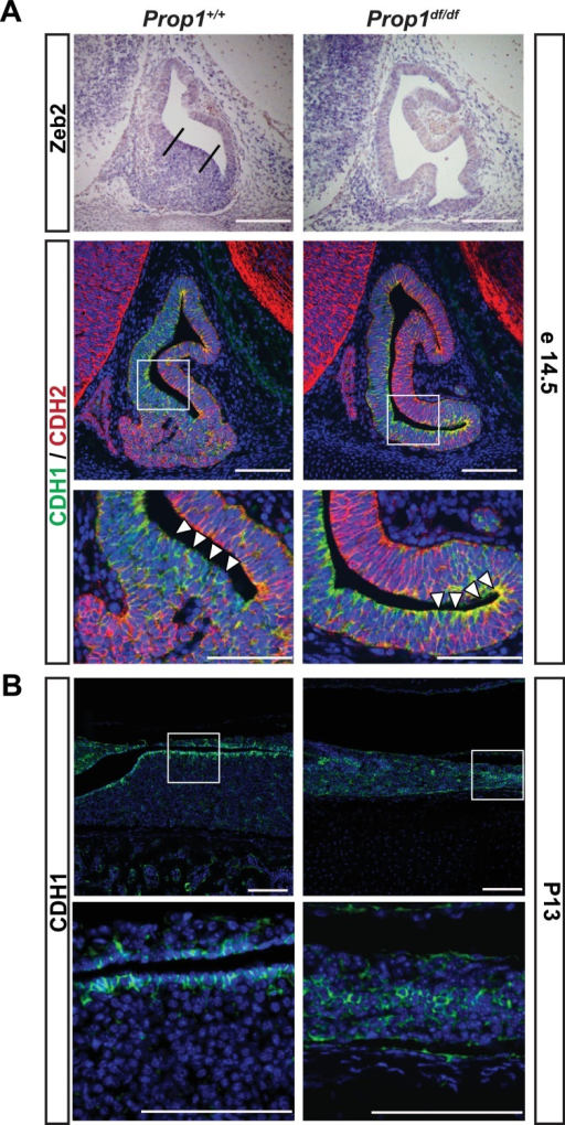Loss of Prop1 affects EMT pathway genes in pituitary tissues.(A) Upper panel:In situ hybridization using a Zeb2 antisense riboprobe at e14.5 detected expression in the control pituitary. Most of the positive cells are in the ventral area, around the cleft (between the lines). In Prop1df/df pituitaries very few cells are expressing Zeb2. Lower panel: Sagittal sections of 14.5 embryos were stained for CDH1 (green) and CDH2 (red) by immunohistochemistry. In the wild-type pituitary, CDH1 expression is dispersed throughout the Rathke's Pouch, while CDH2 expression is more concentrated in the rostral area and in the forming anterior lobe. In Prop1 mutant pituitaries, CDH1 expression is increased and concentrated in the area ventral to the lumen, where Zeb2 expression was absent. White boxes indicate where higher magnification photos were taken. (B) Immunohistochemestry for CDH1 at P13 shows that Prop1df/df pituitaries have an expanded expression of this endothelial protein in the anterior lobe compared to control pituitaries. White boxes indicate where higher magnification photos were taken. Cell nuclei were stained with DAPI (blue). Scale bar 100 µm.DOI:http://dx.doi.org/10.7554/eLife.14470.011