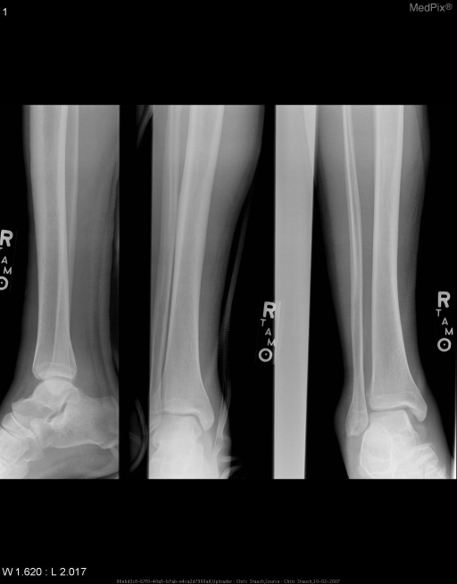 Anteroposterior (A-P), lateral and mortise radiographs of the right ankle through a plaster cast show widening of the tibiotalar and talofibular joints without evidence of cortical abnormality to any of the 3 bones.