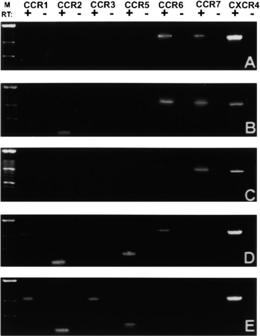 RT-PCR analysis of transcripts encoding chemokine receptors in different DC types generated in vitro and purified ex vivo. cDNAs from the following cell populations were prepared and subjected to PCR: (A) in vitro–generated LCs, derived from flow-sorted CD1a+ LC precursors of 6-d-old CD34+ HPC cultures, analyzed on day 12; (B) epidermal LCs, freshly isolated from skin and purified by FACS®; (C) flow-sorted epidermal LCs cultured for 48 h in the presence of GM-CSF/TNF-α; (D) bulk progeny of GM-CSF/TNF-α–stimulated CD34+ HPCs at day 6; (E) freshly isolated CD11c+ PB-DCs. RT, reverse transcription of mRNA; M, molecular size markers. For primer sequences, see Table .