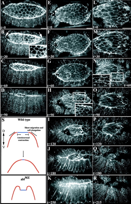 Dorsal closure is substantially slowed in ablMZ mutants. Dorsal view of embryos expressing moesin-GFP, anterior to the right. Time is in minutes. Insets in (B, H, and N) display actin-rich filopodia extending from amnioserosa or leading edge cells. (A–D) Wild-type embryo at 30 min intervals during dorsal closure. (A) The leading edge of the dorsal closure front is uniformly enriched in actin. Lateral epithelial sheets elongate uniformly. (B) 30 min. Amnioserosa cells are undergoing apical constriction and the embryo is zipping together at the anterior and posterior ends (arrows). (C) 60 min. Amnioserosa cells have constricted apically and remain in the same plane of focus as the lateral epithelial sheets. (D) 90 min. Dorsal closure is complete. (E–K) ablMZ mutant. The amnioserosa cells in E are comparable in surface area to the wild-type in A. (F–H) As closure progresses, amnioserosa cells constrict and lateral epithelial cells elongate, but dorsal closure is delayed relative to wild-type (compare D and H). If one matches embryos based on the length of the leading edge (compare A and G), closure is still delayed. This embryo took >4 h to complete closure (K). (L–R) A different ablMZ mutant at higher magnification, illustrating the folding-under of the leading edge and failure to complete closure. (S) Cross-section diagram depicting one interpretation of the defects of ablMZ mutants. In wild-type embryos, the rate at which lateral cells elongate, the sheets migrate, and amnioserosa cells constrict are tightly coordinated. In ablMZ mutants, the leading edge folds under the more lateral epidermis, perhaps because leading edge cells migrate too slowly or amnioserosa cell constriction is slowed (these events are likely coupled), forcing the sheet to fold under. Time-lapse videos supplementing this figure are available at http://www.jcb.org/cgi/content/full/jcb.200105102/DC1. Bars, 25 μm.