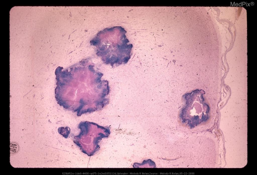 There are central areas of necrosis surrounded by a dense zone of inflammatory cells. No abscess wall is seen. Cresyl violet stain. x6