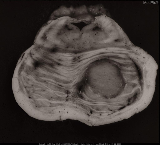 A large tuberculoma in the pars basilaris pontis. It is a homogeneous mass clearly demarcated from the surrounding pontile tissue. This is still another manifestation of the pathogenic effects of tuberculous infection.