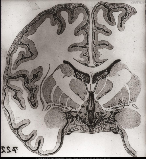 Drawing. The grisea are affected indiscriminately. This pattern is also found in certain other types of polioencephalitis.