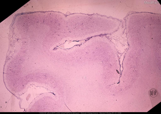 The leptomeninges are moderately thickened and contain a low-grade lymphocytic infiltrate. The stratification of the underlying cortex is blurred or effaced. In some regions the cortical ribbon is narrowed. Cresyl violet stain. x6