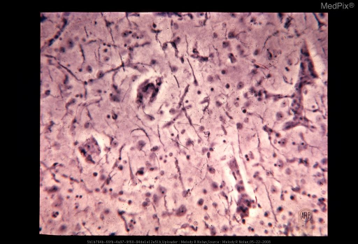 There are numerous rod cells with elongated nuclei, scant perinuclear cytoplasm, and bipolar sparsely branching processes. The rod cells are derived from microglia. Note the proliferation of elements of the vessel wall. Hortega silver impregnation. X269