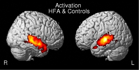 Conjunction map of activation between HFA and controls.