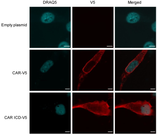 CAR's intracellular domain (ICD) enters the nucleus.Immunofluorescence and confocal microscopy images showing the presence of CAR ICD in nuclei of U87-MG cells. U87-MG cells were transiently transfected with empty pcDNA3.1 V5/His plasmid, full-length CAR-V5 plasmid or with CAR ICD-V5 plasmid. Immunofluorescence staining was performed 24-48 hours post-transfection using anti-V5 tag antibody and Alexa Fluor 555 secondary antibody (red). Nuclei were stained with DRAQ5 (blue). Images were acquired with a confocal microscope (63x oil objective). Images are representative of at least 3 independent experiments. Scale bars: 5 µm.