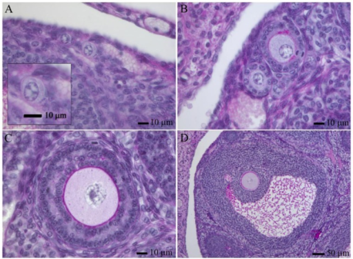 Follicle development in the adult mouse ovary. Primordial (A), primary (B), pre-antral (C) and antral (D) follicles stained with PAS-hematoxilin [42].