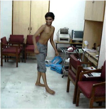 By walking for a few minutes, the patient exhibited a smile and sudden abduction and external rotation of the right lower limb along with abduction and internal rotation of the right upper limb. Speech arrest occurred during the event, the patient could follow commands, and the speech took a while to clear.