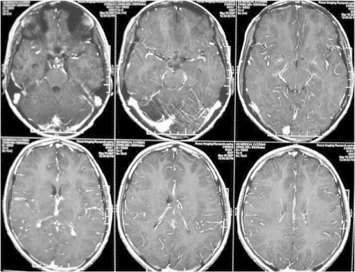 MRI brain showing T1 hypointense and T2/FLAIR hyperintense lesions in the bilateral thalamus and left lentiform nucleus, without any contrast enhancement.