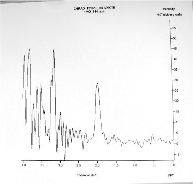 Magnetic Resonance (MR) spectroscopy through left pontine lesion showing normal NAA peak, mild elevation of choline, and no lactate peak.
