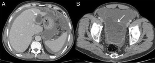 Axial contrast-enhanced CT scan. A. Well-defined and thin walled cystic lesion in the segment II of the liver (Arrow). B. Widespread ascites and cysts into the peritoneal cavity (Arrow).