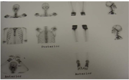 Whole body bone scintigraphy showingincreased uptake inspines and ribs