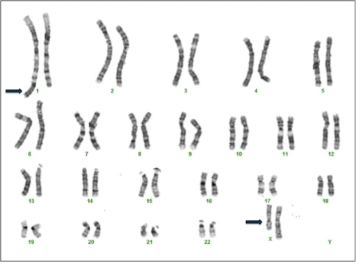 an analysis of the phenomenon of x chromosome inactivation Scientists have been researching the phenomenon of x- inactivation ever since and  x-chromosome inactivation x-inactivation centre xist/xist gene skewed  methylation analysis, on the active and inactive x-chromosomes, discovered.