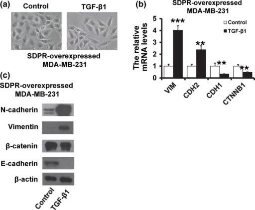 Transforming growth factor‐β (TGF‐β) restores the serum deprivation response (SDPR)‐induced MET phenotype. (a) Cellular morphology of the SDPR‐overexpressed MDA‐MB‐231 with or without TGF‐β1 treatment. (b) RT‐qPCR analysis of mRNA expression of the mesenchymal markers Vimentin and N‐cadherin (CDH2), and epithelial markers E‐cadherin (CDH1) and β‐catenin (CTNNB1) in the SDPR‐overexpressed MDA‐MB‐231 with or without TGF‐β1 treatment. (c) Western blot analysis of protein expression of the mesenchymal markers Vimentin and N‐cadherin, and epithelial markers E‐cadherin and β‐catenin in the SDPR‐overexpressed MDA‐MB‐231 with or without TGF‐β treatment.