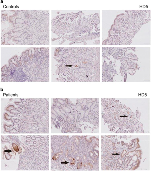 Immunohistochemical staining of HD5 ( × 20 magnification) in biopsies taken from the antrum of controls (a) and patients with heavy alcohol use (b). Specific staining is marked by large arrows. Examples for more unspecific staining are marked by thin arrows.