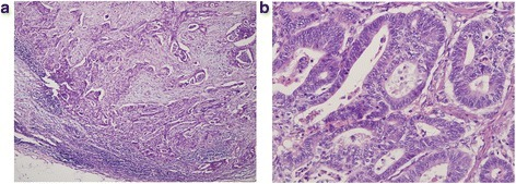 Microscopic images of the tumour from the pathologic specimen; haematoxylin and eosin staining. a Low-power magnification (×100) showing a moderately differentiated adenocarcinoma of the jejunum with invasion into the lymph nodes. b High-power magnification (×400) showing adenocarcinoma