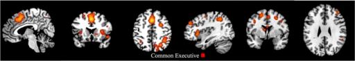 First-level analyses for common executive in the child group (x = 5, y = 17, z = 47; x = 113, y = 75, z = 58). ALE maps showing the significant brain activation for common executive in the child group (30 clusters).