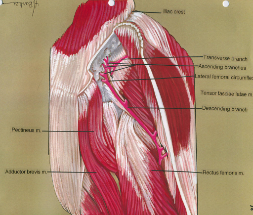 pectineus muscle; adductor brevis muscle; iliac crest; lateral femoral circumflex artery; tensor fasciae lata muscle; rectus femoris muscle